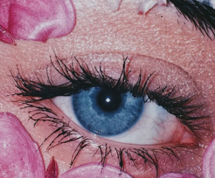 埋线的双眼皮好不好 襄阳韩蔻整形医院割双眼皮恢复过程