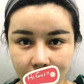 杭州广仁整形医院做双眼皮修复后眼睛对称了 效果宛若天生