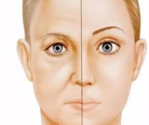 深圳米兰柏羽整形医院热玛吉除皱 让肌肤逆龄生长