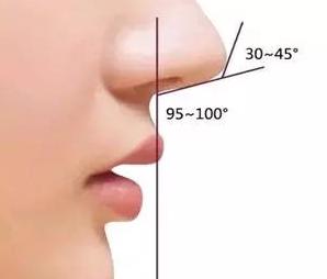 清远人民医院美容整形科鼻小柱延长手术的对比图 要多少钱