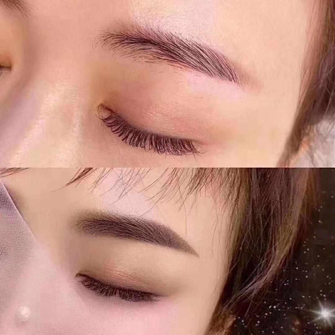 成都市锦江人民医院植发科种植眉毛价格贵不贵 是永久的吗
