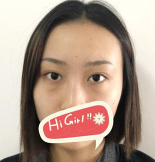 天津美联致美整形医院做的激光去眼袋值得一赞 重返18岁