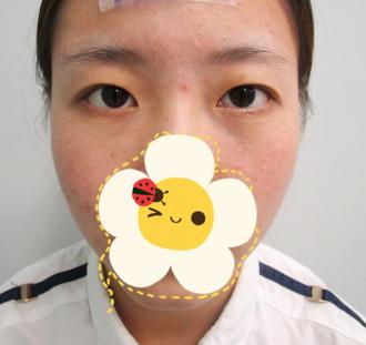 昆明韩辰整形医院做的切开双眼皮闭眼也好自然 技术精湛