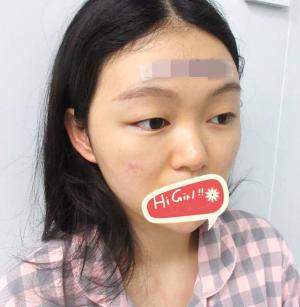 深圳天美整形医院耳软骨隆鼻案例 360度无死角 拍照美美哒
