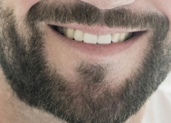 长沙雍禾植发医院胡须种植后会脱落吗 有没有年龄限制