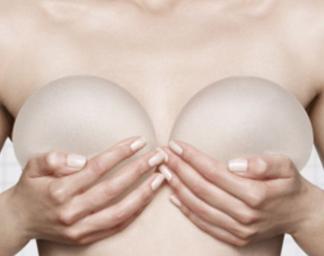 东莞美立方整形医院李志刚做假体隆胸效果怎么样 性价比高