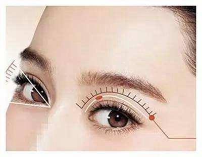 开眼角真的可以放大双眼吗 南宁医学整形开眼角恢复要多久