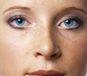 兰州城关区人民医院整形科激光祛斑优势 还你白净脸蛋