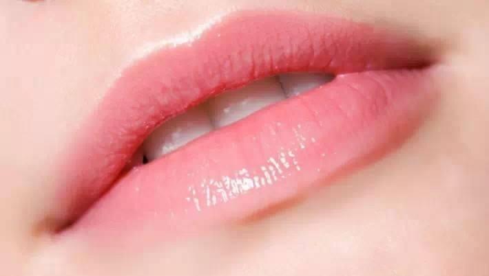 唐山华阳整形医院厚唇改薄手术全过程 重塑撩人美唇