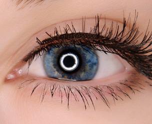 眼部整形哪家好 长沙爱思特整形医院张姣姣开内眼角的效果