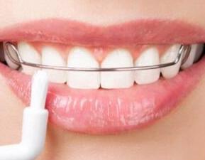 泉州维乐口腔门诊地包天矫正手术 让牙齿整齐美观不反弹