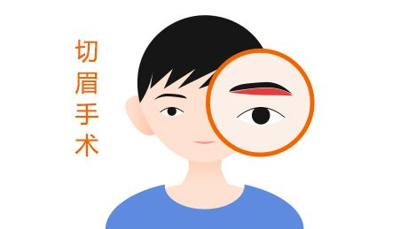 切眉术价格贵吗 海南伊佳整形医院切眉术可以改善哪些问题