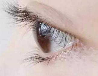 大连雍禾植发医院种睫毛的过程痛吗 术后会一直变长吗