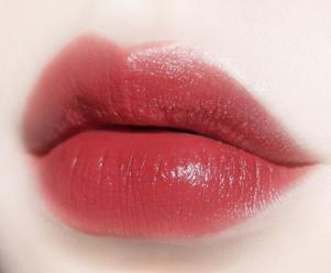 纹唇的美学标准 宁波卡丽整形医院勾勒唇部曲线