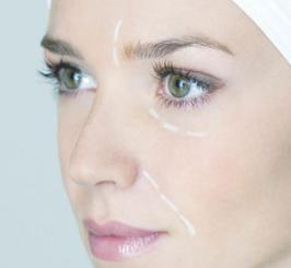 葫芦岛颐正整形医院双眼皮修复价位表 术后会留疤吗