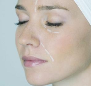 西安艾娜薇特整形医院面部吸脂会肿多久 做巴掌脸女孩