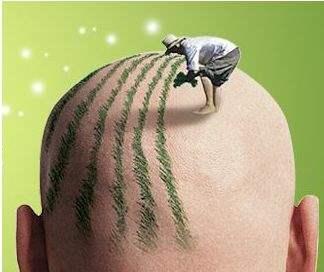植发后多久能长出来 北京博士园做头发种植价格表