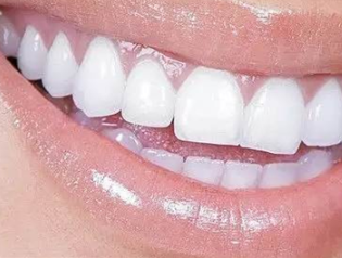 烤瓷牙的使用寿命是多久 深圳贝臣口腔门诊部专注牙科整形