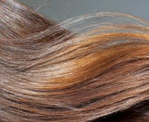 重庆真伊医院毛发种植科做头发种植怎么样 改善地中海