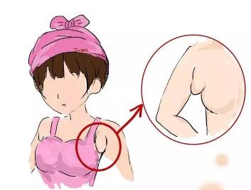 副乳切除还会长吗 广州曙光整形医院刘杰伟乳房整形专家