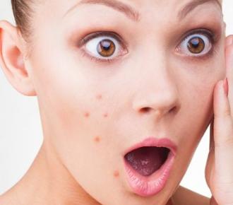 激光祛痘做几次有效 深圳希思整形医院韦海传专研皮肤美容