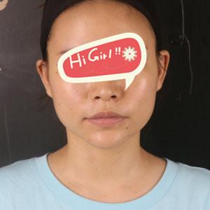 在郑州魏荷花整形医院做下颌角磨骨后脸小了好多 蜕变日记