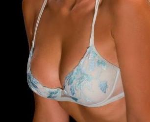 贵阳利美康整形医院鲁天宇自体脂肪隆胸的特点 美体隆胸