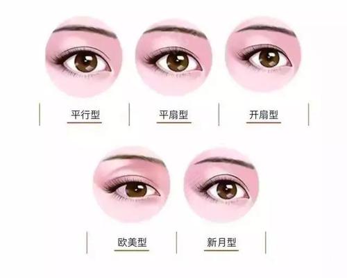 双眼皮都有哪些做法 苏州薇琳王小申做双眼皮是无痕的吗