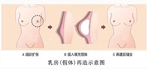 东莞宝格丽整形医院怎么样 乳房再造有几种方法