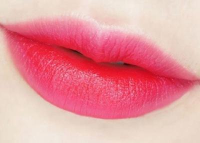 厚唇改薄哪里做比较好 杭州秀华整形厚唇改薄怎么样