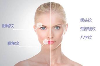 无锡宜兴人民医院整形科激光除皱价目表 全面改善肤质