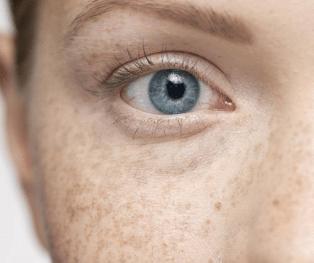 南宁韩星整形医院苏晖展做激光祛斑优点 准确判断皮肤问题