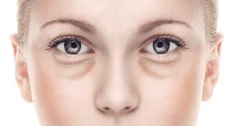 眼袋怎么预防 西宁华美整形医院牛天栋介绍祛眼袋方法