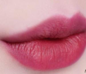 苏州常熟时代整形医院纹唇术优点 勾勒精致唇线