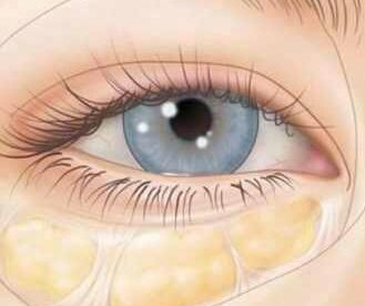 激光祛眼袋优势 郑州美眼整形医院张行祛眼袋专家推荐