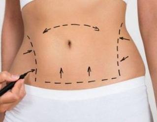 太原星范整形医院郭荣腰腹减肥吸脂后多久能消肿 值得一试