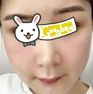 青岛刘晋胜整形医院下颌角磨骨亲身体验 越来越美了 很值得