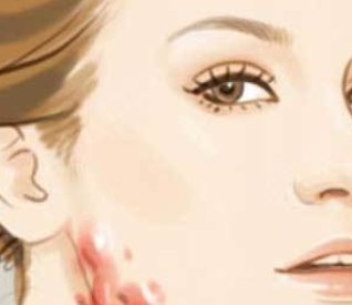 大连爱德丽格整形医院程超做激光祛疤贵吗 收获平整肌肤