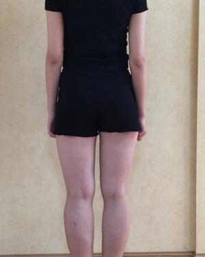 在大连光普整形医院做大腿吸脂后瘦了8厘米 穿超短裙好美