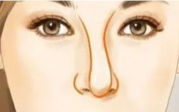 歪鼻矫正 华中科技大学同济整形医院王旭明再造俏丽美鼻