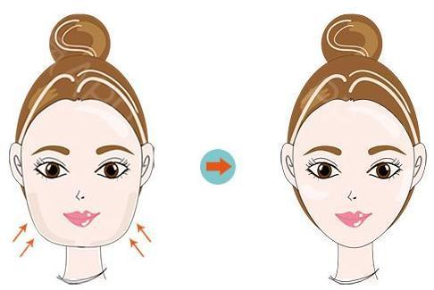 面部吸脂有危险吗 成都艾米丽医院潘红伟 瘦脸就是这么简单