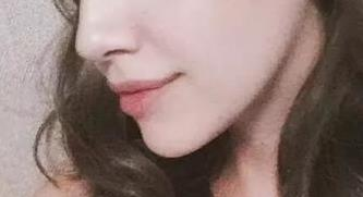 假体隆鼻有何优点 广州广美整形医院徐立志 鼻整形代表人物