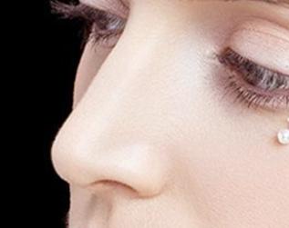 假体隆鼻推荐 长春中妍奥拉克整形医院高萍隆鼻的技术优势