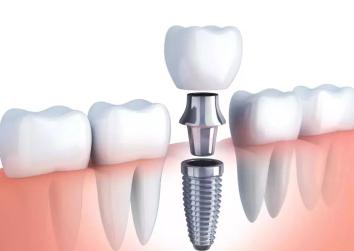 牙齿缺失怎么办 青岛华韩整形医院张磊种植牙优势显著