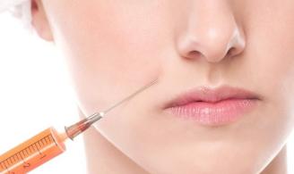 南宁韩星整形医院李科自体脂肪注射隆鼻 塑造理想鼻型