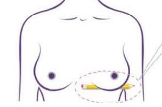 抚顺博爱医院整形科乳房下垂矫正的方法 还原双乳美感