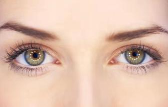 深圳米兰柏羽整形医院朱武根切开双眼皮的手术优点 效果好