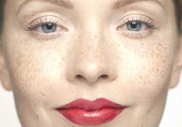 长沙晶肤整形医院激光祛斑价格优惠 朱苗缔造美丽容颜