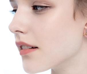 标准的下颌角宽度是多少 杭州美莱下颌角整形怎么样