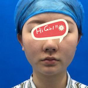 唐山颐安娜整形医院做面部吸脂后脸型很好看 告别大饼脸